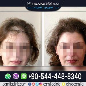 hair_transplant_for_woman63