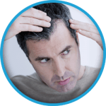 Men hair transplant Turkey Istanbul | Camilia Clinic